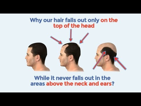 Best Hair loss treatment   How to stop hair loss naturally and baldness cure 2018