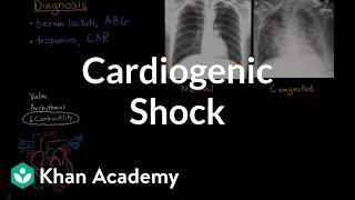 Download Lagu Cardiogenic shock | Circulatory System and Disease | NCLEX-RN | Khan Academy Mp3