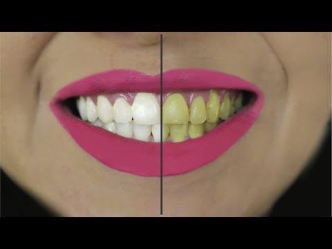 Como Clarear Os Dentes Em 2 Minutos Receitas Ineditas Teeth