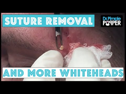 Whitehead extractions & Suture Removal in Acne Patient: Part 3