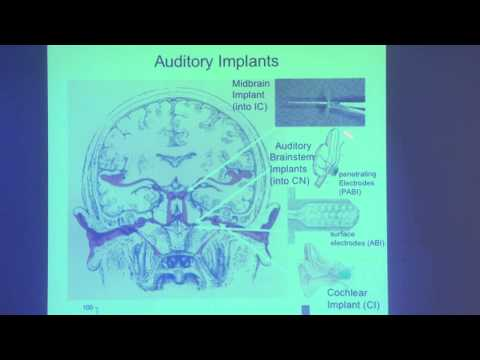 18. Hearing loss; demo by Sheila Xu, cochlear implant user