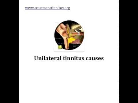 causes of tinnitus