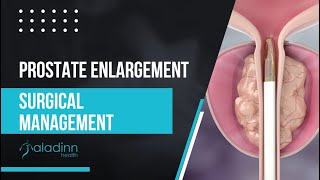 Prostate Enlargement Surgical Management by Dr. Roychowdhury