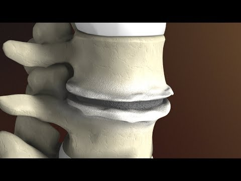 Degenerative Disc Disease (aka: Spondylosis) explained by Dr. Jessica Shellock