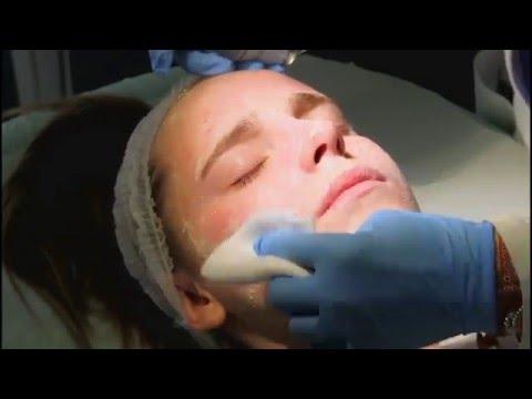 Nuovo Peeling per il trattamento dell'acne