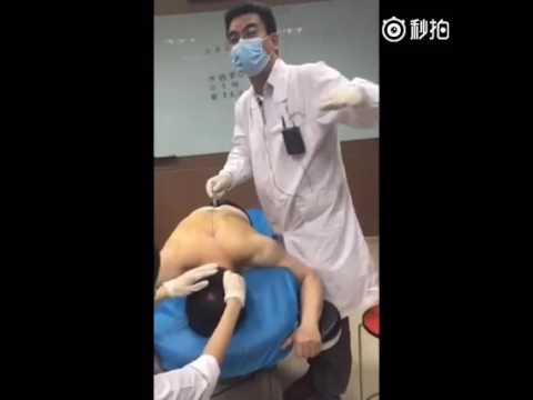"""Tämän kiinalaisen """"lääkärin"""" neulahoito ei ole herkkien katsottavaa"""