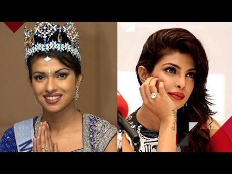 Priyanka Chopra Talks About Her Nose Job Rumours