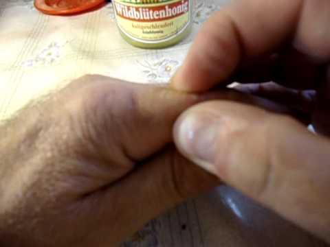 ekelig distgusting Video pop a pimple ekeliges Video Pickel ausdruecken