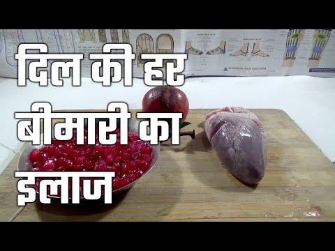 दिल की हर बीमारी का इलाज | heart disease treatment in hindi