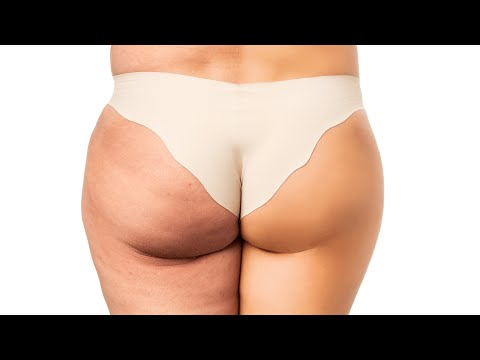 Cellulite Treatment -The 5 Critical Keys to Kill Your Cellulite - Get Rid Of Cellulite