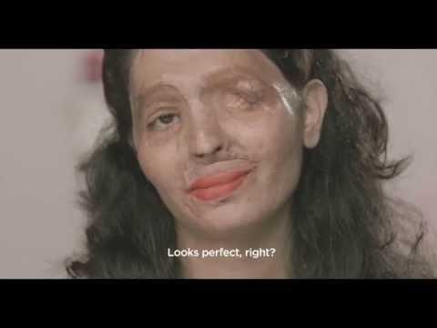 這位被家暴又潑硫酸毀容的女性主動教導大家「化妝的技巧」,她完妝後的臉龐完全找回了自信與美麗啊!