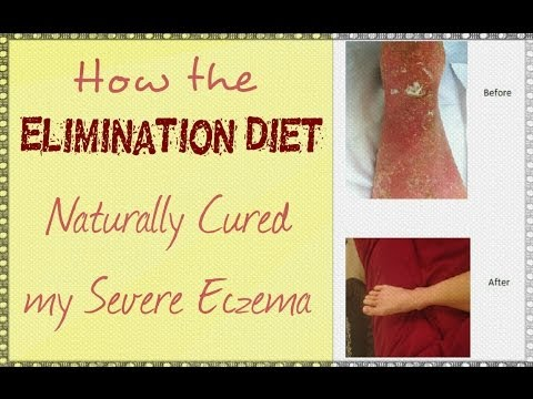 how to get rid of bad eczema