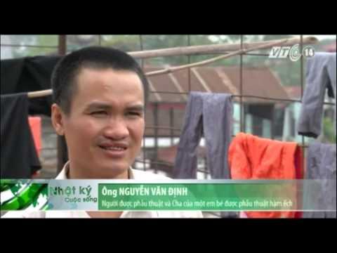 Trả lại nụ cười cho hơn 33.000 trẻ em Việt Nam bị dị tật môi, vòm miệng