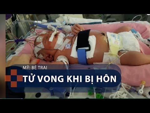 Mỹ: Bé trai tử vong khi bị hôn | VTC1 - Thời lượng: 117 giây.