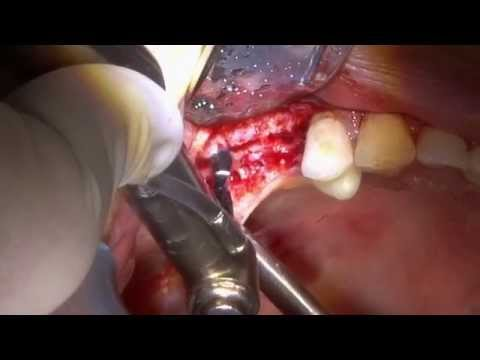 Ridge Split & Immediate Implant Placement