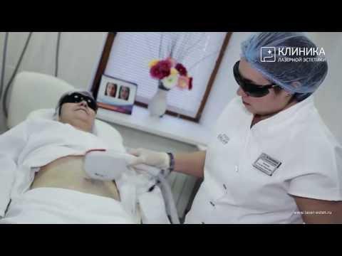 Нехирургическая подтяжка кожи лица, живота по SST- технологии