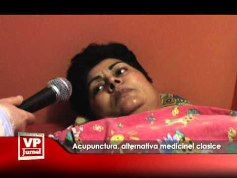Acupunctură, alternativă medicinei clasice