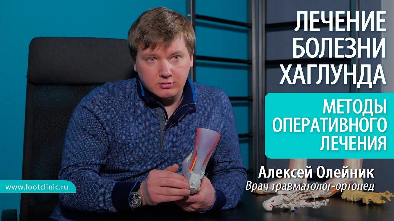 Какие есть методы оперативного лечения при деформации Хаглунда? - хирургия стопы Алексея Олейника