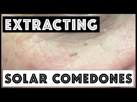 Extracting solar comedones and blackheads in forehead creases