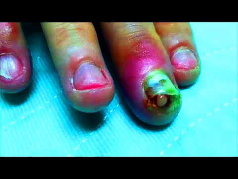 Fingernail Infection Drained!