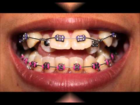 My Braces (June - July 2012)