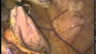 Laparoscopic Appendectomy-Hook diathermy for mesoappendix