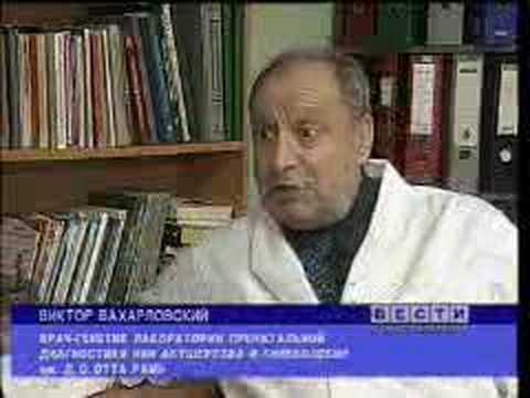 СМА Верднига-Гоффмана
