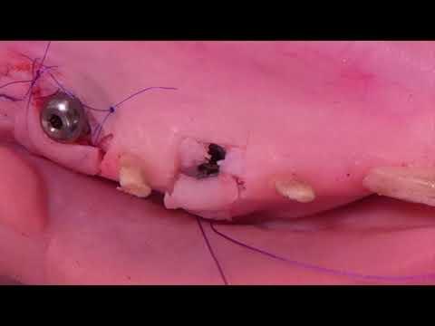 Хирургическое лечение одиночной рецессии десны в области имплантата