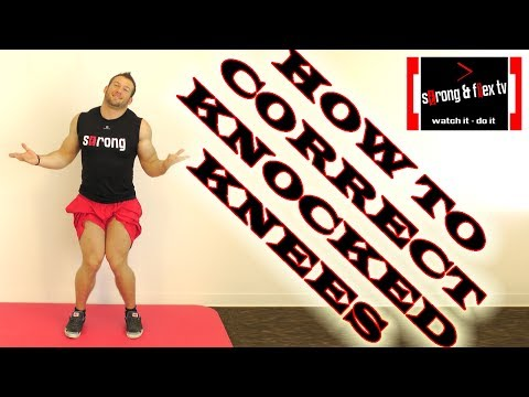 how to treat knock knees