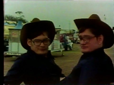 Ronnie & Donnie Galyon - conjoined twins