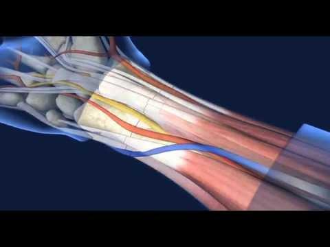 UCLA Hand Transplant Procedure
