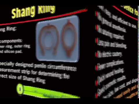 adult circumcision - The Shang Ring is a simple, effective, and efficient adult male circumcision technique. It significantly reduces operative time, has fewer complications, and...