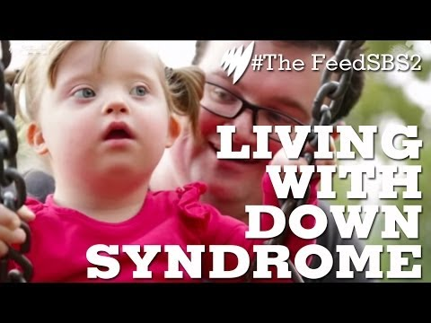 Veure vídeo Down Syndrome Life