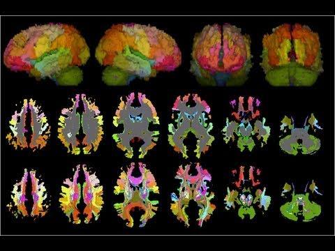 Nicht graue Substanz: die bunte Gehirn (UCL)