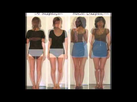 Как скрыть недостатки ног? 51