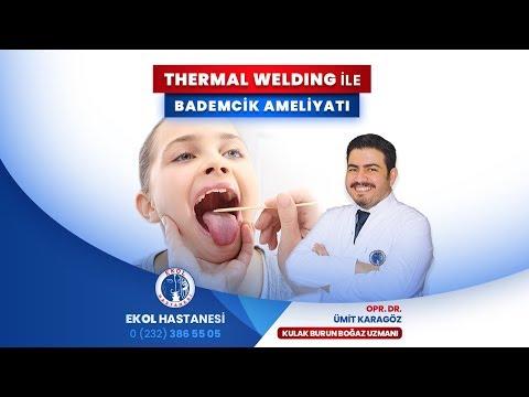 Thermal Welding İle Bademcik Ameliyatı - Opr. Dr. Ümit Karagöz - İzmir Ekol Hastanesi