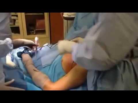Infected Shoulder (part 1)