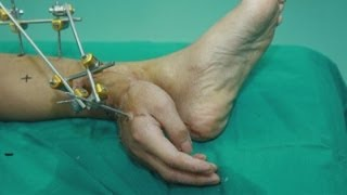 Man's severed hand grafted to foot after accident in China