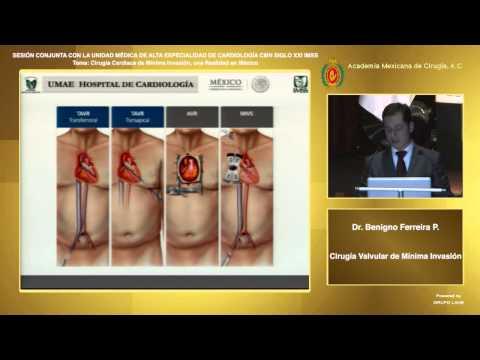 Cirugía Valvular de Mínima Invasión, Dr. Benigno Ferreira Piña - 28/10/2014