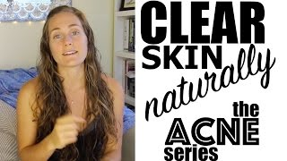 2. Cure Chronic Acne Naturally Part 1 - Diet, Exercise, Lifestyle - The Acne Series