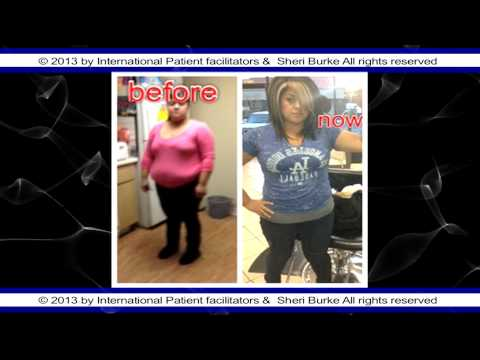 lap band surgery mexico patients before and after weight loss surgery mexico