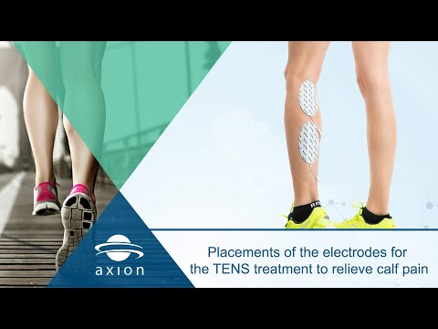 Placements of the electrodes for the TENS treatment to relieve calf pain