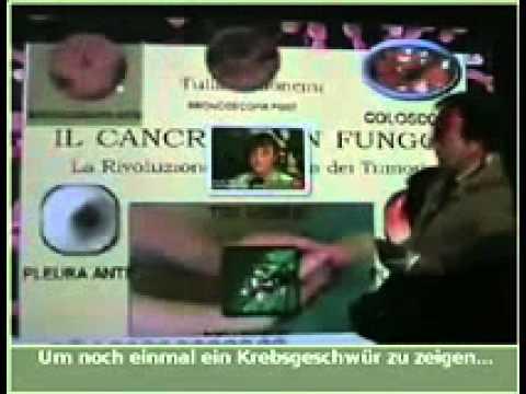 Krebs durch Pilzinfektion Candida Albicans