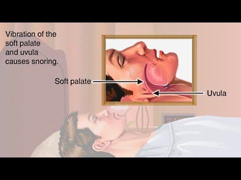 How & Why Snoring Occurs Animation - Where Snoring Comes From What Happens - Causes of Snoring Video