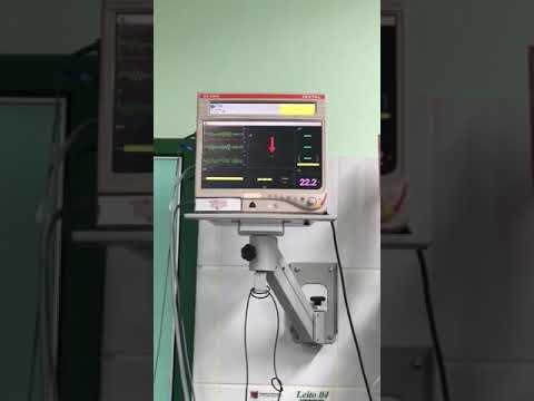 Paciente de 72 años con SCA que presenta TV polimórfica y FV que logra revertirse. Dr. Raimundo Barbosa Barros. Fortaleza, Brasil