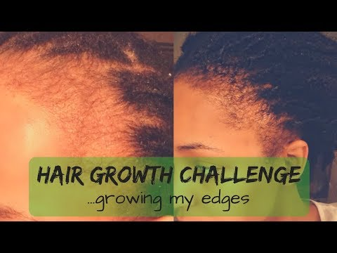 HAIR GROWTH CHALLENGE: GROW YOUR EDGES AND STARTER LOCS [KIESHA ARIELLE]