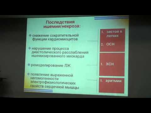 Лекция по тромболизису 01.avi