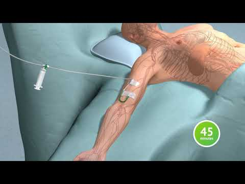 3D Animation Visualization of Fluorescence Guided Imaging in Laparoscopic Cholecystectomy