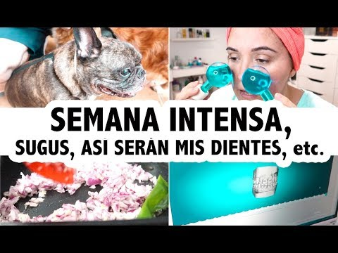 Modelos de uñas - SEMANA MUY INTENSA + SUGUS + ASÍ SERÁN MIS DIENTES Vlog