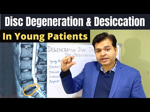 Disc Degeneration L5 S1, Disc Desiccation, Disc Degeneration Causes, DDD-Degenerative Disc Treatment